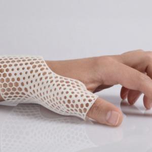 Orthèse en impression 3D